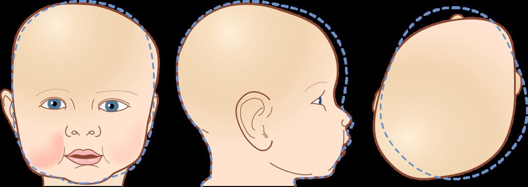 philadelphia baby helmets for plagiocephaly torticollis medeast