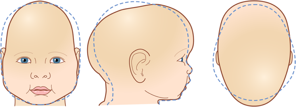 Cranial Head Shapes Sagittal Synostosis