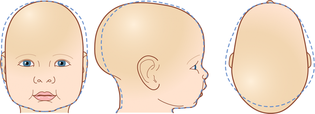 Cranial Head Shapes Scaphocephaly