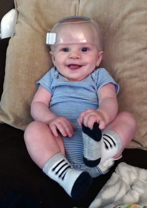 baby with cranial helmet